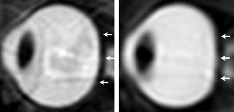 A súlytalanság hatása a szemre (szem, súlytalanság, )