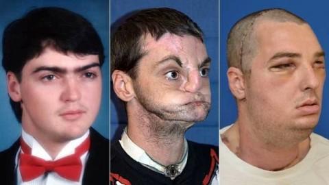 Richard Lee Norris (Richard Lee Norris, arcátültetés, arctranszplantáció, )