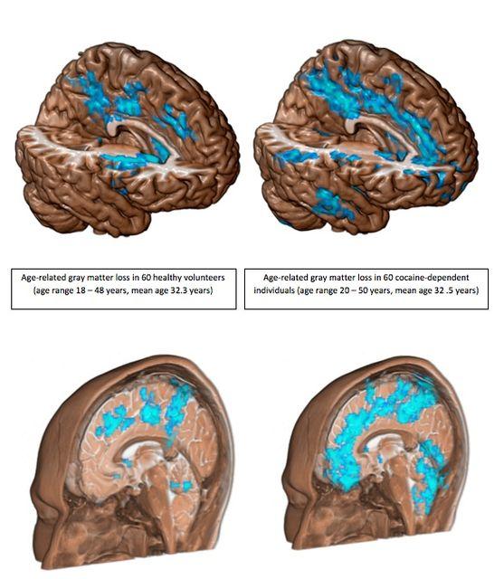 Kokainos agyveszteség (agy, )