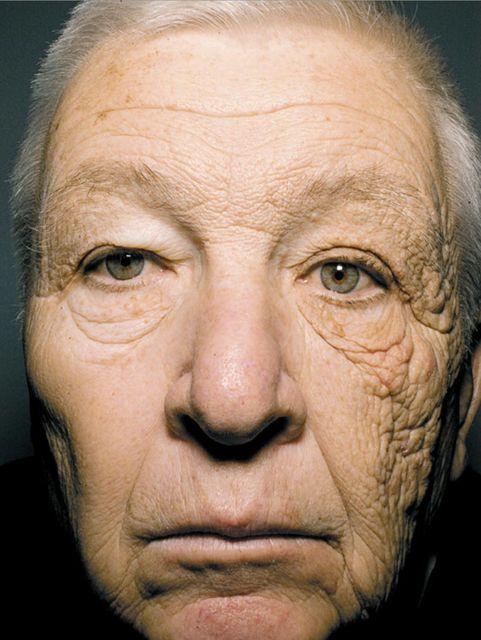 Nap hatása (nap, bőr, napfény, öregedés, )
