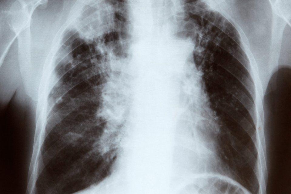 tüdő (tüdő röntgen)