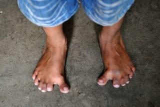 tizenkét lábujj (Arpan Saxena)