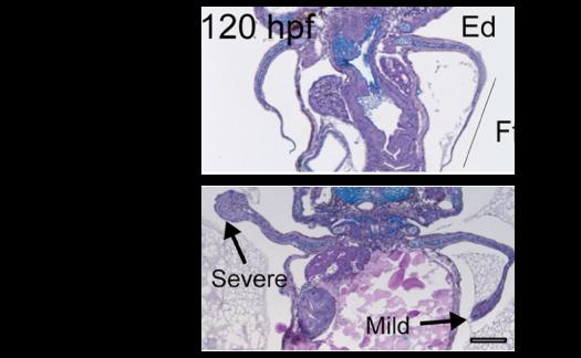 Lábatlan és lábas zebrahal embrió (zebrahal, zebradánió, )