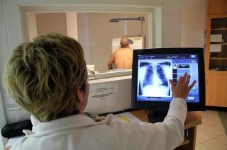 tüdőszűrés (ingyenes, )