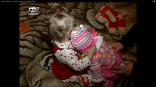 Alexa (moldova, születési rendellenesség, )
