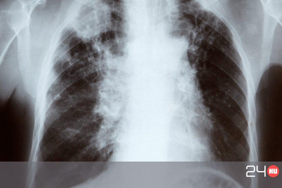 A tüdőrák - tünetek és első tünetek, okok, diagnózis, kezelés - Tünetek April