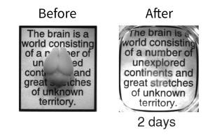 Átlátszó agy (agy, )