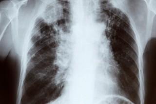 tüdőröntgen (tüdőröntgen)