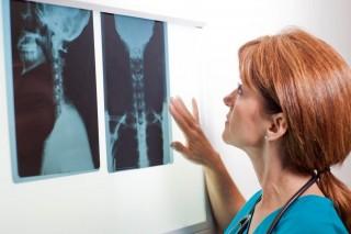 röntgen (röntgen, )