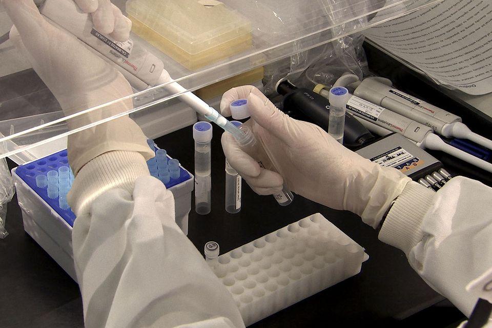 DNS-vizsgálat (DNS-vizsgálat)