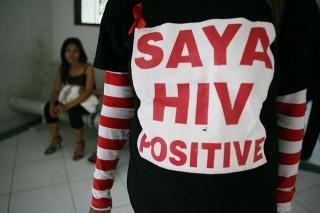 aids (aids)
