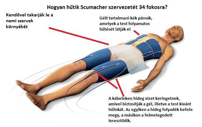 Schumacher hűtés (michael schumacher, schumacher, testhűtés, testhő, )