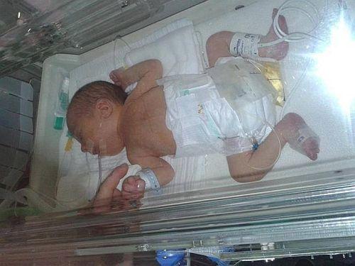 döme, fél szívvel született baba (döme, fél szívvel született baba)