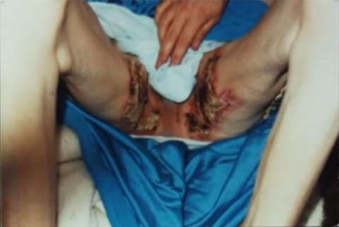 Liebeck sérülése (Array)