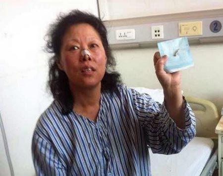 Zhao golyó (műtét, golyó, )