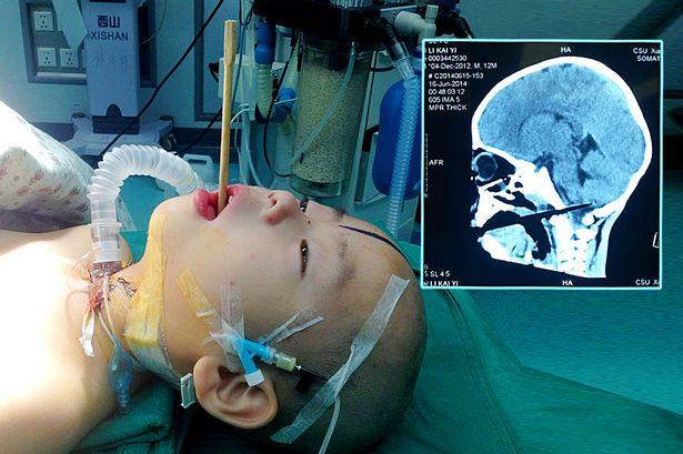 Li Kaiyi műtét előtt (Li Kaiyi, )