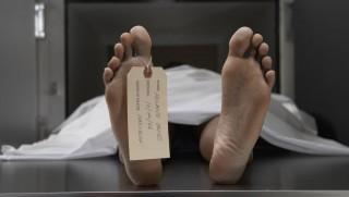 Hulla (hulla, holttest, halott, patológia, )