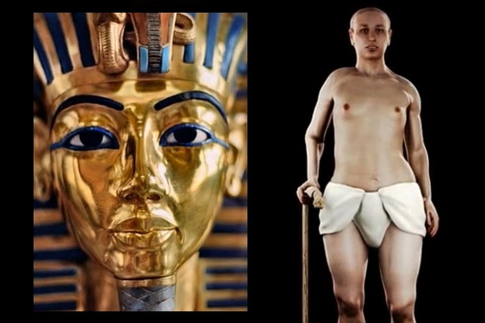 Tutanhamon (Tutanhamon, uralkodó, egyiptom, torzszülött)