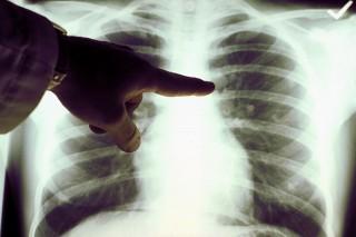 tüdő (tüdő, )