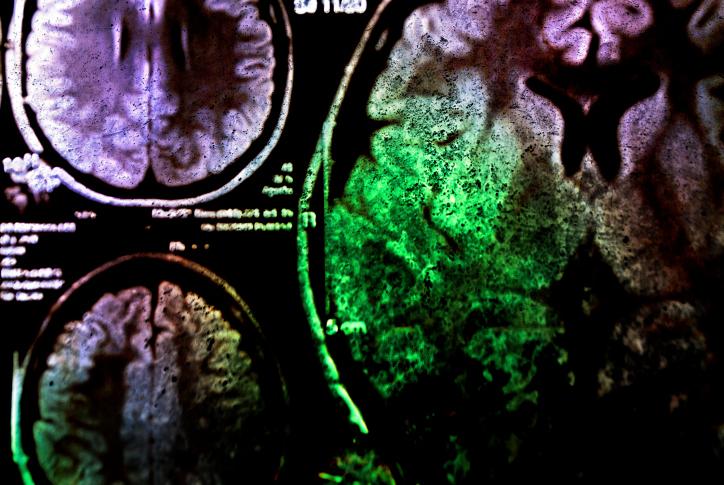 agy (agy, röntgenkép, )