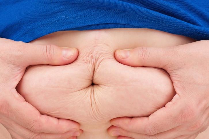 kover(210x140).jpg (kövér, elhízás, túlsúly, )