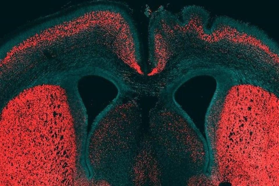 Szupergen(1)(1)(960x640).jpg (agy, agykutatás, genetika, fejlődés, tudomány, gén)