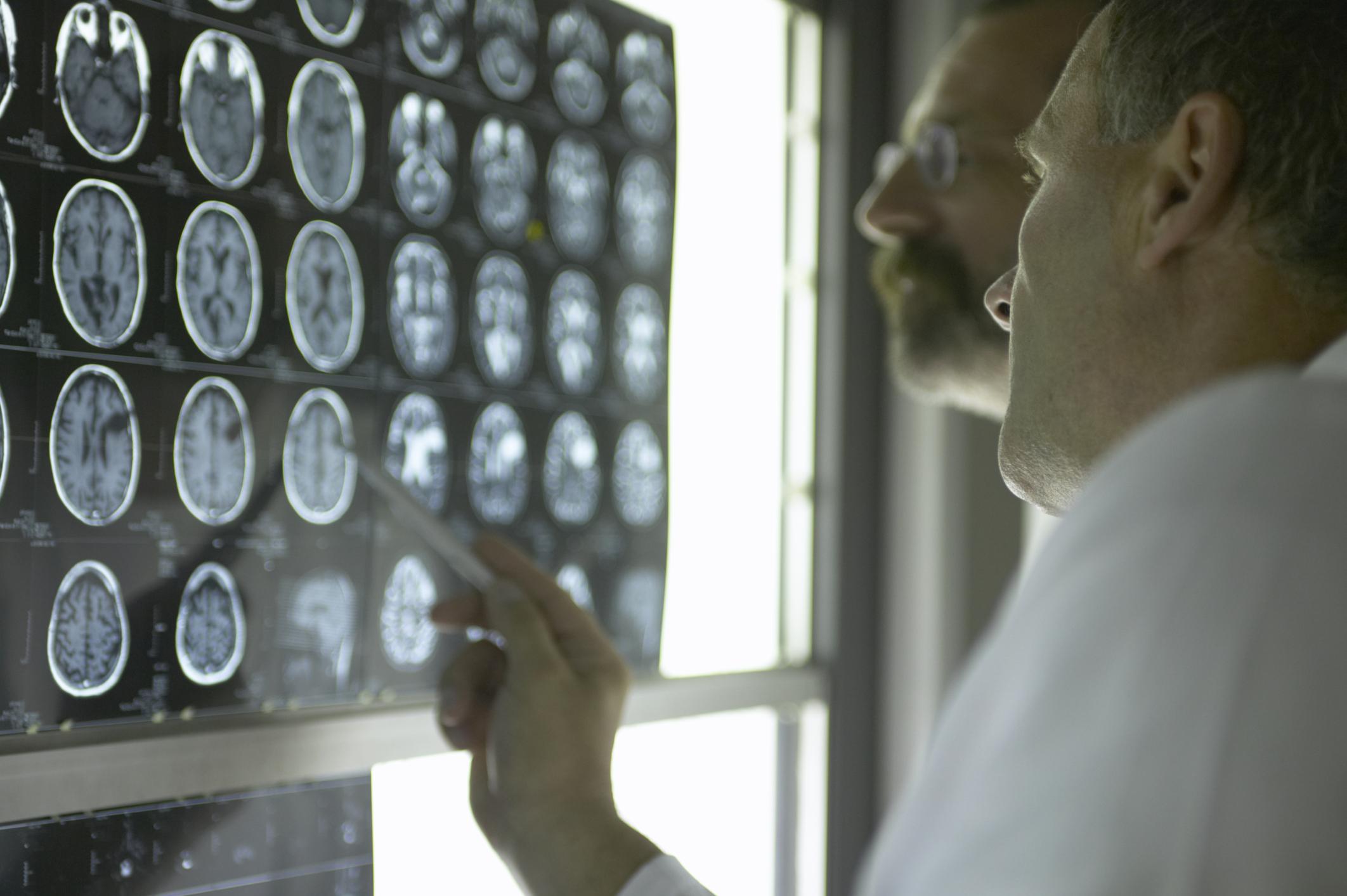 gyilkos agy 3 (erőszak, gyilkos, gyilkosság, gyilkos hajlam, gén, genetika, agy, agyműködés, agykutatás, amigdala, enzim, harcos gén, pszichológia, orvostudomány, fmri, )