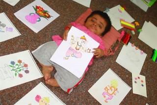 19-eves-baba(960x640).jpg (gyermek, születési rendellenesség, india, )