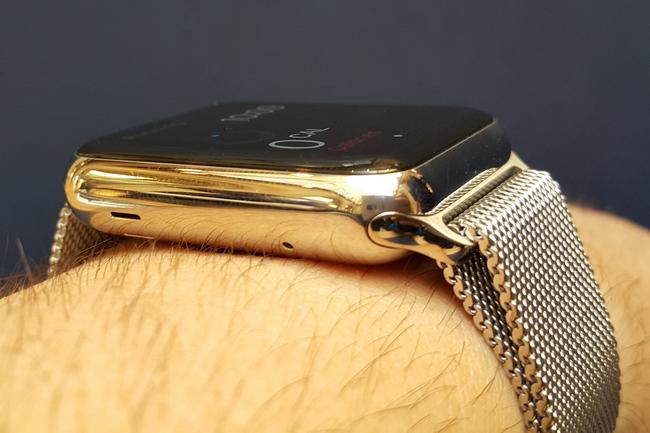 tn-a02 (technet, apple, watch, okosóra, ios, viselhető, kütyü)