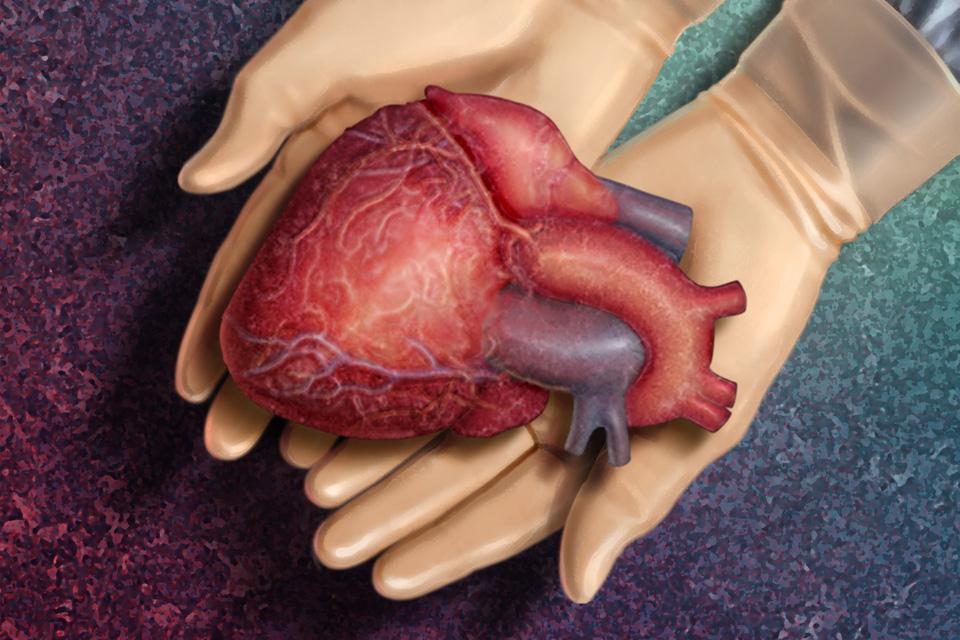 transzplantáció, szerv átültetés (Array)