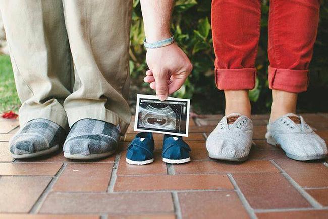 család, ultrahang, apa, anya, gyerek (Array)