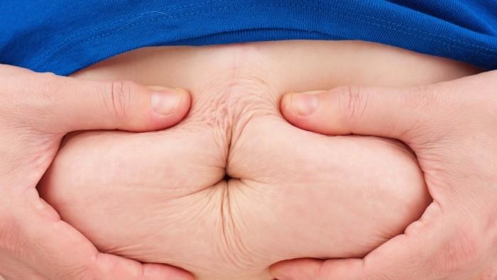 kövér (Array)