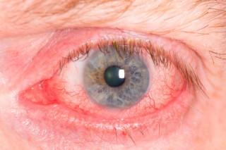 vörös szem (Array)