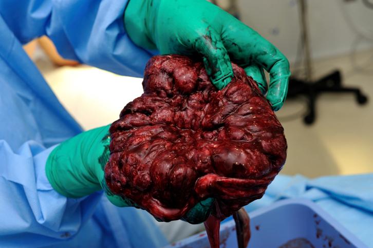 fresh placenta