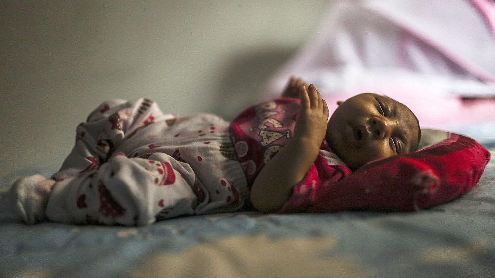 Rio de Janeiro, 2016. február 12. Egy kóros kisfejûséggel született egy hónapos kislány, Manuelly Araujo da Cruz Rio de Janeiróban 2016. február 11-én. Az édesanya várandósságának harmadik hónapjában fertõzõdött meg a zikavírussal, és feltehetõleg ez idézte elõ a csecsemõben a mikrokefáliát. (MTI/EPA/Antonio Lacerda)