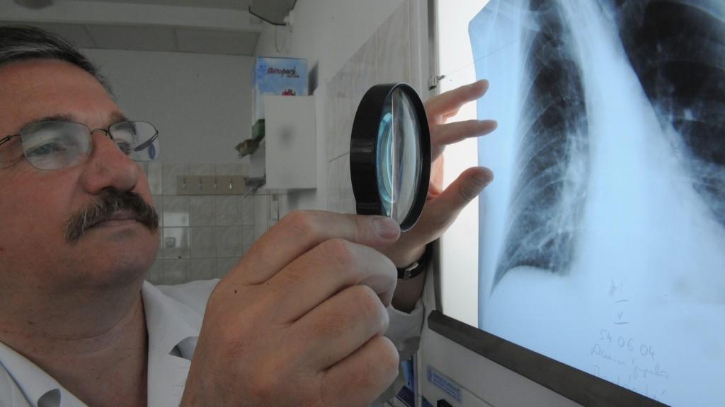 Egészségügy - Kötelező tüdőszűrés Debrecenben
