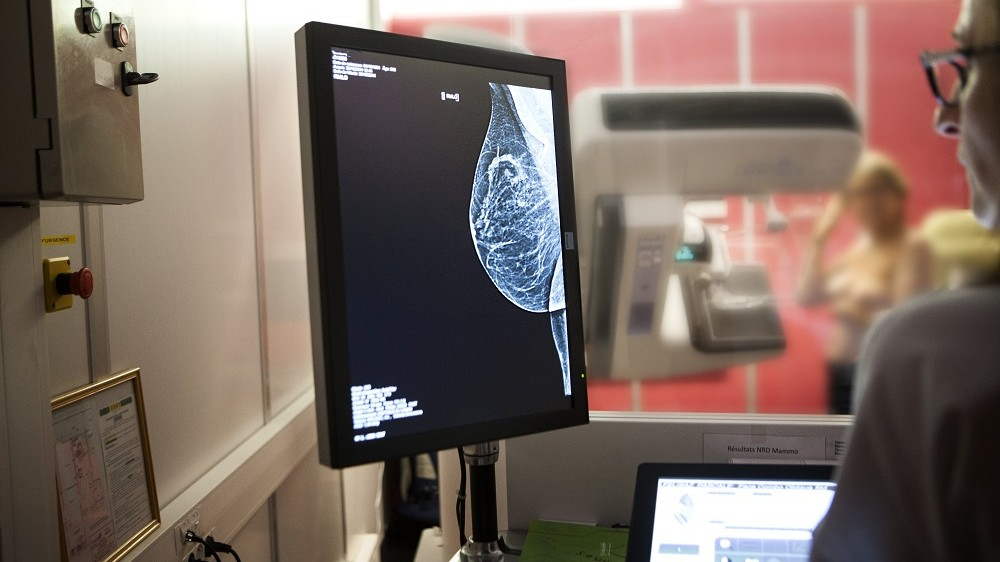 MAMMOGRAPHY EXAMINATION  Reportage in a radiology service in a hospital in Haute-Savoie, France. Digital mammogram.   AMELIE-BENOIST / BSIP