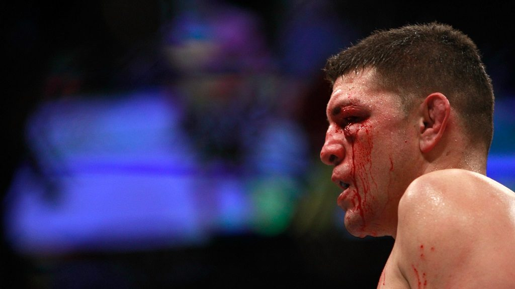 LAS VEGAS, NV - JANUARY 31: Nick Diaz stands in the Octagon after taking a hit from Anderson Silva in a middleweight bout against Anderson Silva during UFC 183 at the MGM Grand Garden Arena on January 31, 2015 in Las Vegas, Nevada. Silva won by unanimous decision.   Steve Marcus/Getty Images/AFP