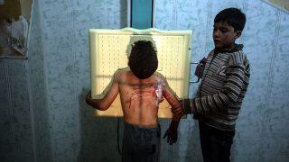 Duma, 2016. november 7. Légicsapásban megsebesült kisfiú karját fogja egy társa egy egészségügyi központban végzett vizsgálaton a Damaszkusz közelében fekvő és a szíriai felkelők uralta Dumában 2016. november 7-én. (MTI/EPA/Mohamed Badra)