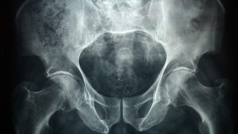 Xray of a male pelvic, it's a high resolution 24 mp photo not a scan.