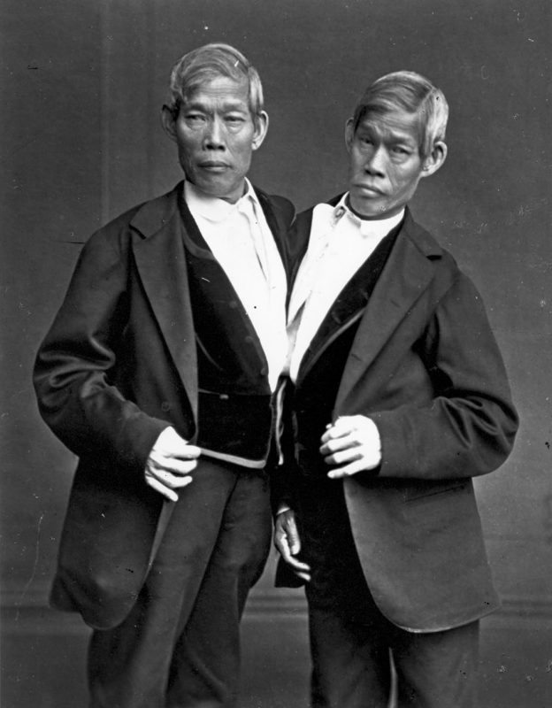 circa 1865:  The most famous Siamese twins, Chang and Eng Bunker (1811 - 1874), after whom the rare condition is named. Born in Siam (modern Thailand), they married two sisters and had nine children each, eventually dying on the same day.  (Photo by Hulton Archive/Getty Images)