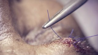 Stitching wound by with surgical thread