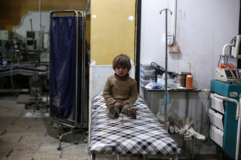Duma, 2017. február 26.A szíriai felkelők és a kormányerők harcaiban megsebesült kislány egy tábori kórházban, a főváros, Damaszkusz közelében fekvő Dumában 2017. február 25-én. Az ENSZ égisze alatt zajló béketárgyalások február 23-án kezdődtek újra tíz hónapos szünetet követően a svájci Genfben. 2016-ban három alkalommal ültek tárgyalóasztalhoz a damaszkuszi kormány és az ellenzék képviselői bármiféle eredmény nélkül. (MTI/EPA/Mohamed Badra)