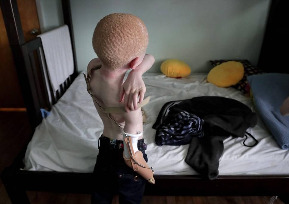 Elmont, 2017. június 27.A tizenhárom éves Emmanuel Festo felveszi új karprotézisét, mielőtt asztalhoz ül vendéglátója otthonában, a New York állambeli Elmontban 2017. június 4-én. (MTI/AP/Julie Jacobson)