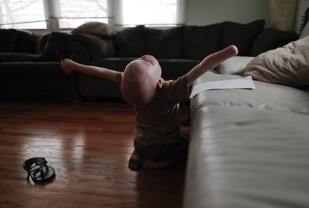New York, 2017. június 27.A hétéves Baraka Cosmas nyújtózkodik a Global Medical Relief Fund (GMRF) egészségügyi segélyszervezet által finanszírozott otthonban, New York Staten Island városrészében 2017. március 28-án. (MTI/AP/Julie Jacobson)