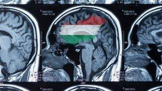 mri scan of brain by computer tomography.