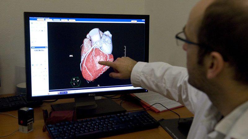 Budapest, 2013. január 11.Philips Brilliance típusú 256 szeletes CT-berendezéssel vizsgált szív háromdimenziós képét mutatja egy orvos egy számítógép monitorán a fővárosi Városmajori Szív- és Érgyógyászati Klinikán 2013. január 11-én. A felnőtt szívátültetés magyarországi központja első helyen végzett az Év kórháza-díj szavazáson. A Házipatika.com által nyolc éve alapított Év kórháza-díj odaítéléséről maguk a betegek dönthettek egy két hónapon át tartó internetes szavazáson, amelyen az állami finanszírozással működő fekvőbeteg-intézményeket értékelték. Öt kategóriában szavazhatott a közönség.MTI Fotó: Koszticsák Szilárd