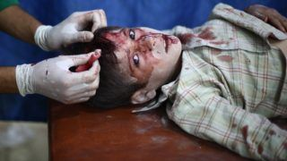 DAMASCUS, SYRIA - SEPTEMBER 17: An Injured Syrian kid receives treatment at a field hospital after Assad regime forces' air attacks on an opposition controlled residential area in Douma town, in the eastern Gouta region of Damascus, Syria on September 17, 2015. Mohammed Badra / Anadolu Agency