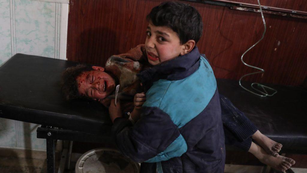 Dúma, 2018. február 9. Sebesült kisfiú bátyja karjaiban egy dúmai kórházban 2018. február 8-án, miután a szíriai kormányerõk bombázták a szíriai fõváros, Damaszkusz közelében levõ, lázadók uralta Kelet-Gúta több települését. A támadásban hetvenöten életüket vesztették. (MTI/EPA/Mohammed Badra)