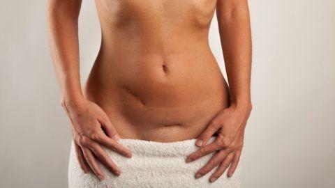 Scars - Frau, Hände, Bauch mit Narben